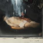 Rembrandt's cadaver